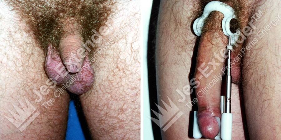 Male penis enlarger extender stretcher system men penis pump traction device s